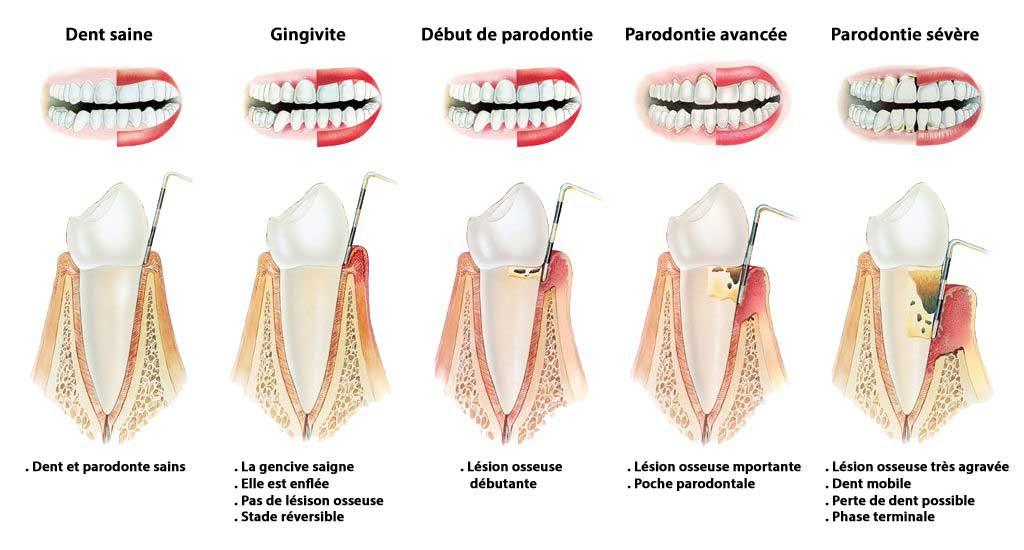 Parodontie, docteur Bercea, dentiste, Nice-Est